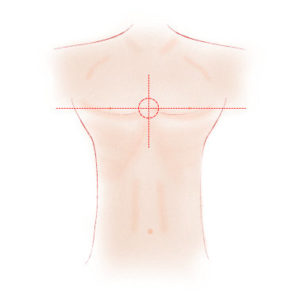 Herzdruckmassage HDM Druckpunkt = Mitte der Brust